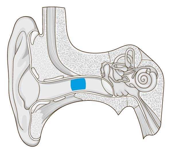 diagram of ear with earwax highlighted